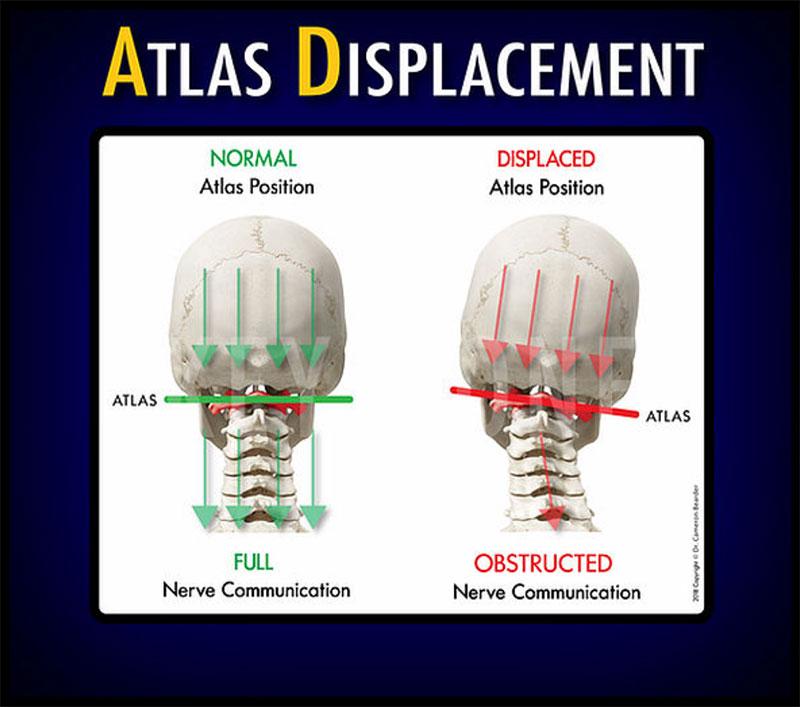 atlas displacement explainer